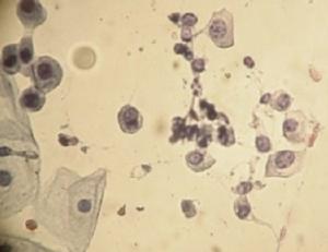 citologico urinario