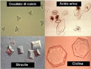 cristalli urinari
