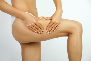 Cellulite: Come Combatterla con Questi Rimedi Efficaci