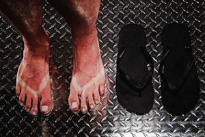 eritema solare ai piedi